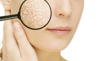 Bei den ersten Anzeichen für trockene Haut sollten Sie reagieren